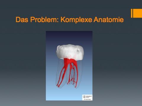 DVT in der Endodontnie